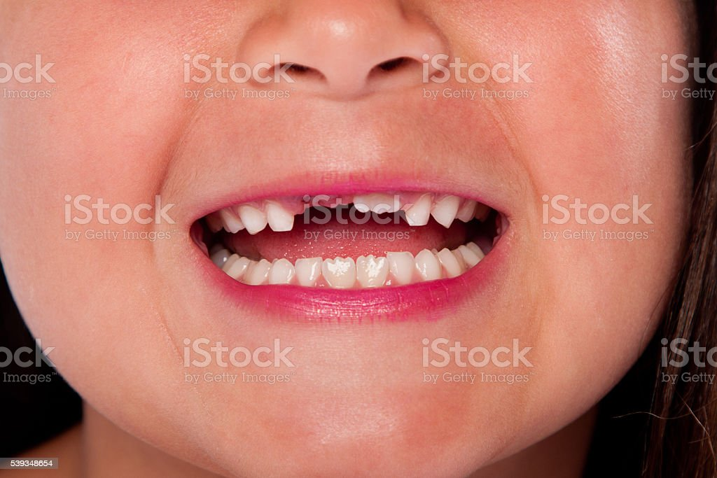 Missing teeth mouth stock photo