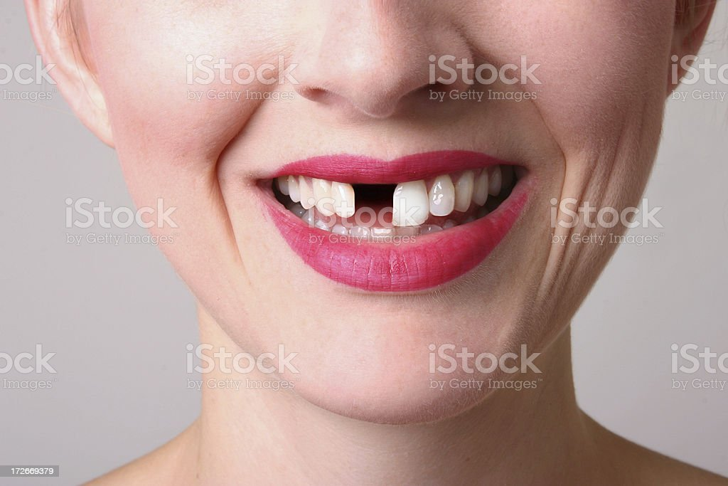 Missing Tooth royalty-free stock photo