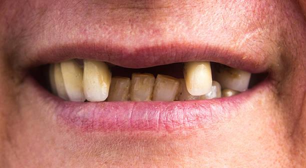 fehlende zahn - zahnlücke stock-fotos und bilder