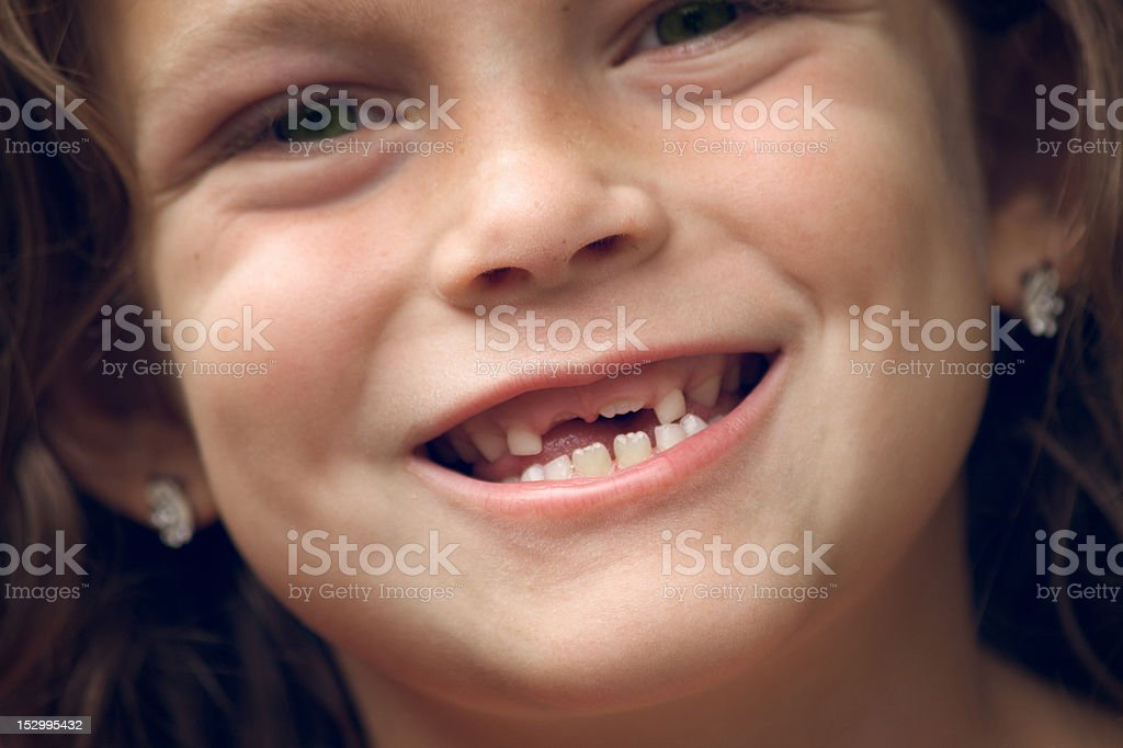 Young girl has a big space in her smile