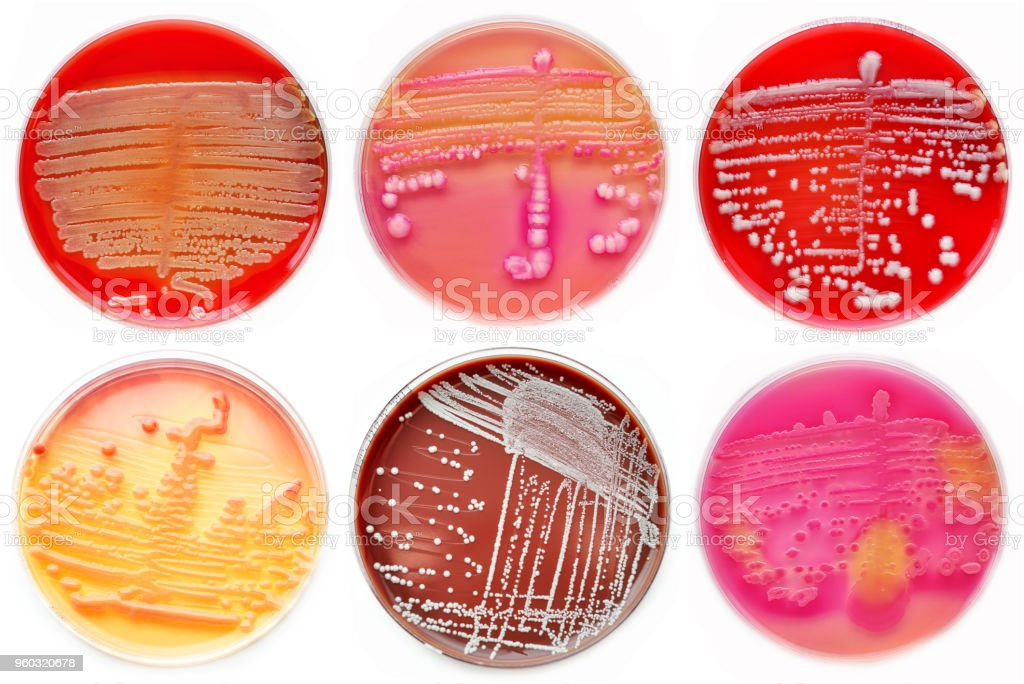 Mixed of bacteria colonies in petri dish stock photo