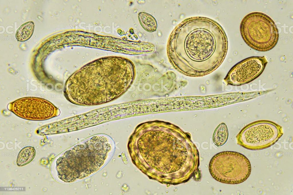 protozoare helminthiases papillomavirus malpighiano lingua