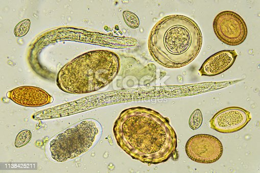 Mixed of helminths or parasitic worm in stool, analyze by microscope