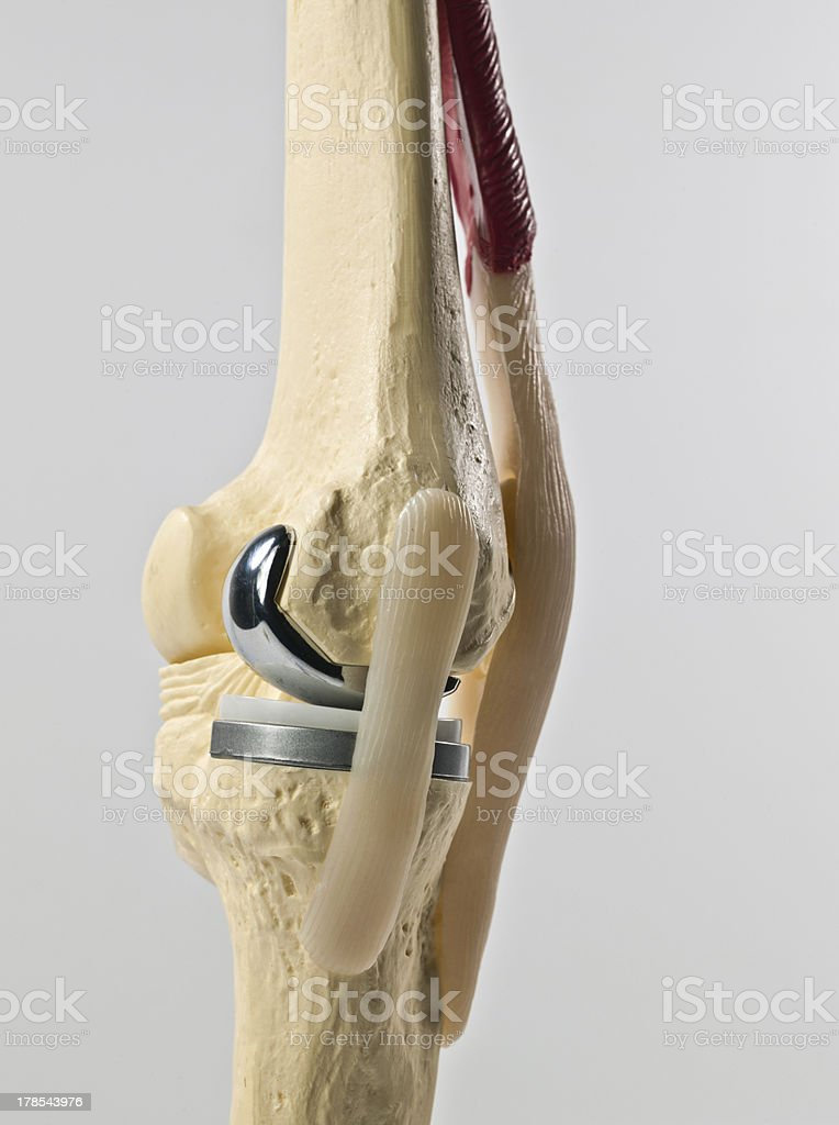 model of an human knee replacement royalty-free stock photo