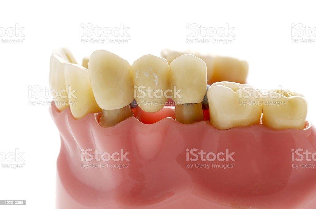 Modèle de utilisés pour remplacer le pont dentaire dent manquant - Photo