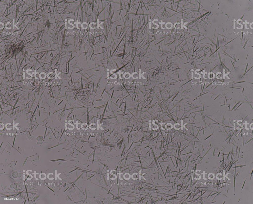 Moderate Uric acid crystal needle shape stock photo
