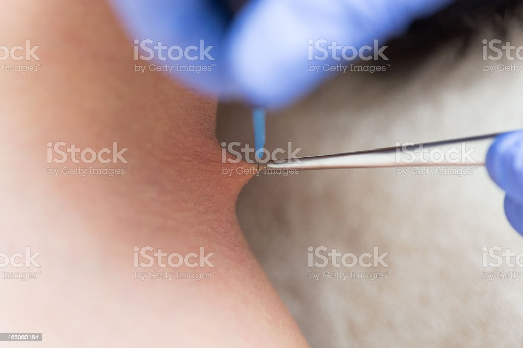 Mole removal stock photo