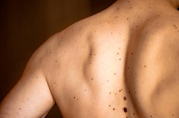 maulwürfe auf dem rücken eines mannes. - melanom stock-fotos und bilder