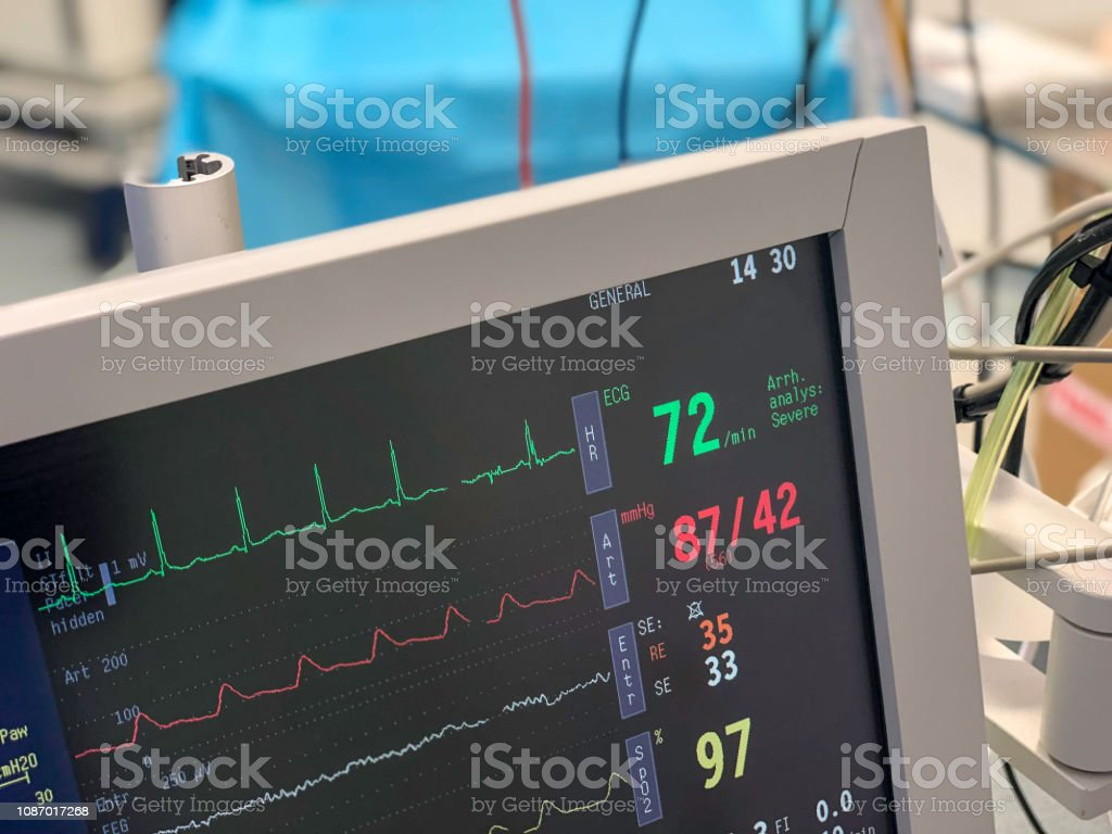 Monitor in operating theatre to measure vital signs of a patient undergoing surgery. Monitor in operating theatre to measure vital signs of a patient undergoing surgery. Anesthetic Stock Photo