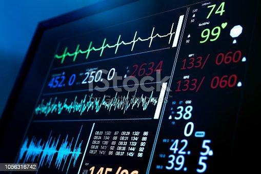 ECG hospital monitor showing vital statistics