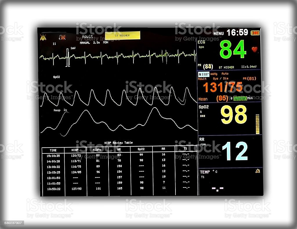 EKG monitor stock photo