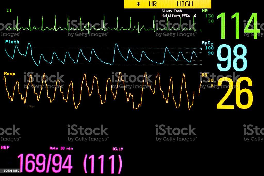 Monitor vital signs. stock photo