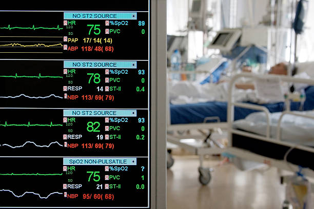 monitoring in ICU stock photo