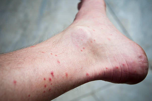 Best Mosquito Bite Stock Photos, Pictures & Royalty-Free