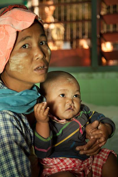 mère et enfant au docteur - palais buccal photos et images de collection