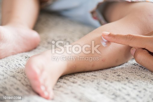 istock Mother applying cream on a girl's legs with red spot, blister. Medicine and health care concept. 1019412258