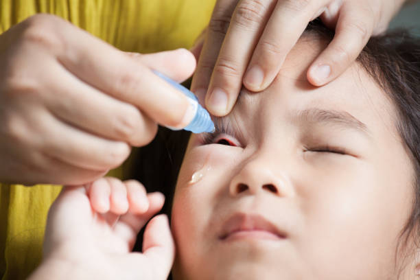 Mother dripping eye medicine in the child girl eyes stock photo