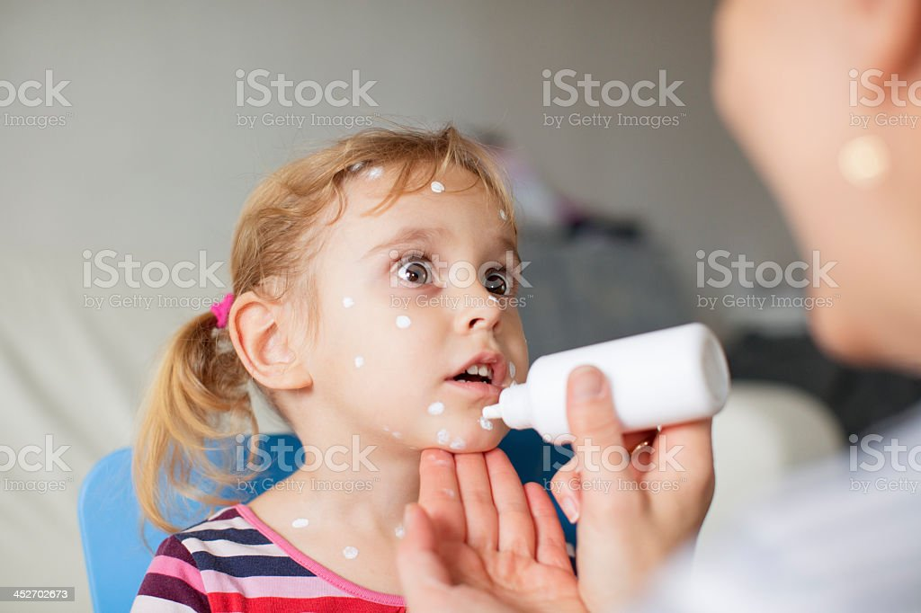 Mother Nursing Child With Chickenpox. royalty-free stock photo