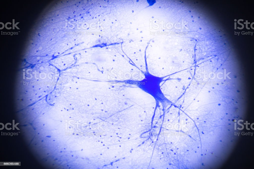 motor nerve cells in microscopy motor nerve cells in microscopy Abstract Stock Photo