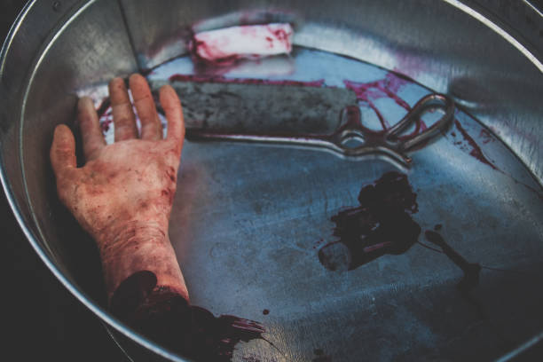 Moulage of cut-off hand lies in the blood in a basin together with medical saw by way of illustration the work of doctors, surgeons in wartime or scene of crime stock photo