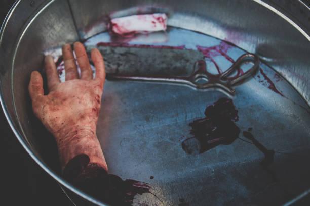 Moulage de mano de corte se encuentra en la sangre en un recipiente junto con el médico vio a modo de ejemplo el trabajo de los médicos, cirujanos en tiempo de guerra o escena del crimen - foto de stock
