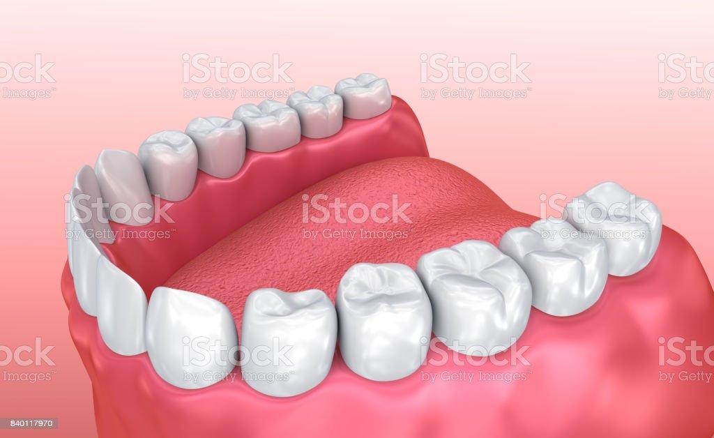 Boca De Goma Y Los Dientes Médico Preciso Ilustración En 3d Dental ...