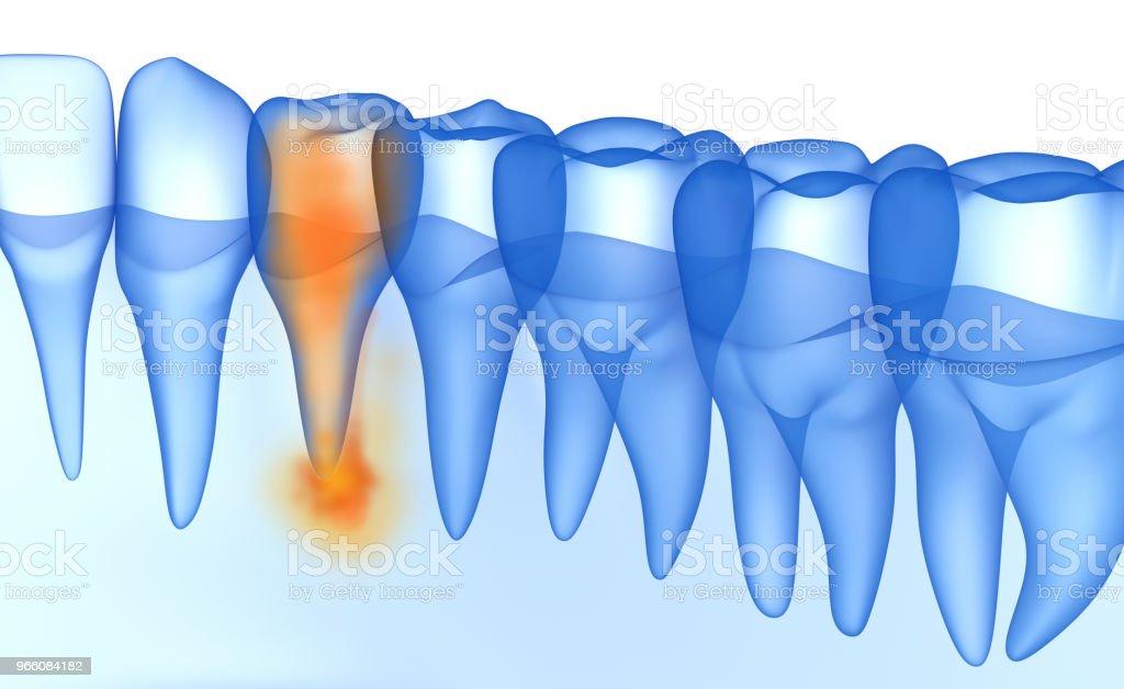 Munnen tandköttet och tänderna xray Visa. Tänder problemet. Medicinskt korrekt tand 3D illustration - Royaltyfri Anatomi Bildbanksbilder