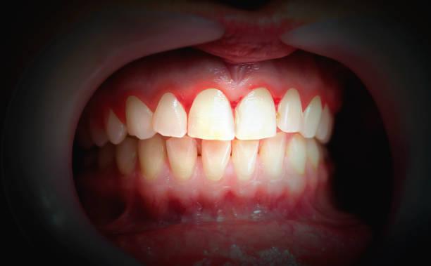 mond met bloeden tandvlees op een donkere achtergrond. - tandvleesontsteking stockfoto's en -beelden