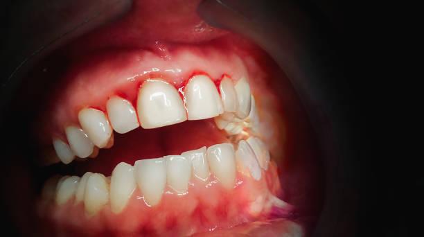 mond met bloeden tandvlees op een donkere achtergrond - tandvleesontsteking stockfoto's en -beelden