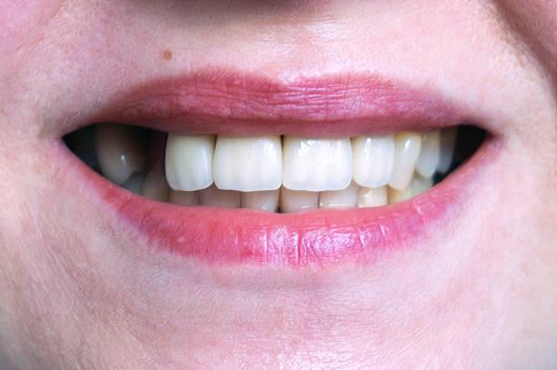 mund mit vier prothetische oberen zähne - zahnlücke stock-fotos und bilder