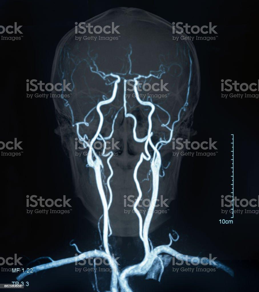 vasos sanguíneos de resonancia magnética de cerebro - foto de stock