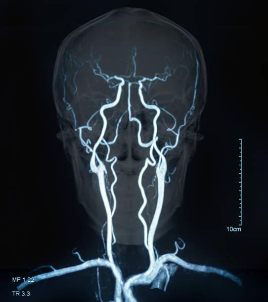 mri blood vessels in brain stock photo