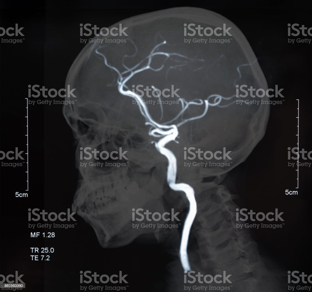 mri blood vessels in brain stock photo