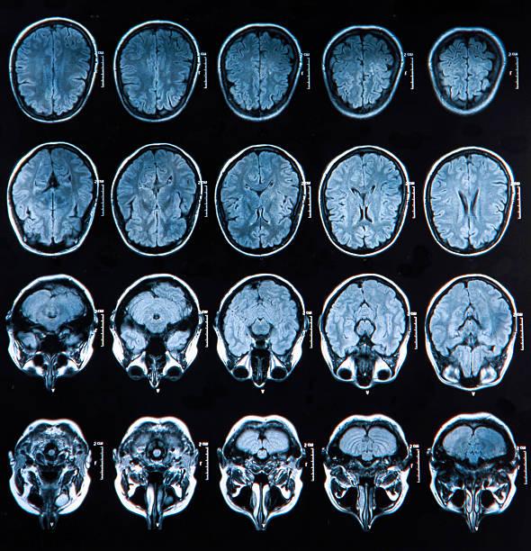 Mri Brain Scan MRI scan of the human brain corpus callosum stock pictures, royalty-free photos & images