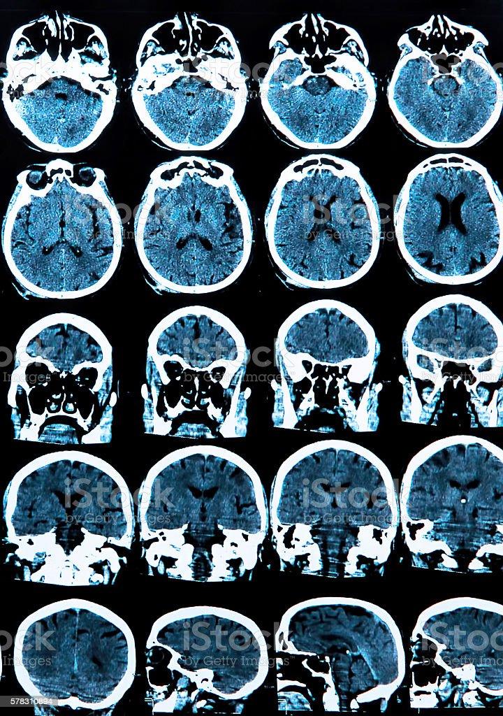 Fotografía de Mri Tomografía Cerebral y más banco de imágenes de ...