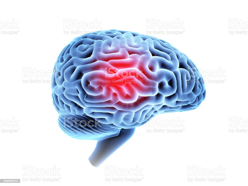 Mri brain with headache. stock photo