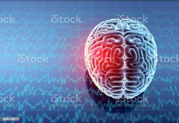Mri brain with headache picture id938046810?b=1&k=6&m=938046810&s=612x612&h=f97n3iy q4sbnrmznphya1slbk62jjxc1p8gmarjcjs=