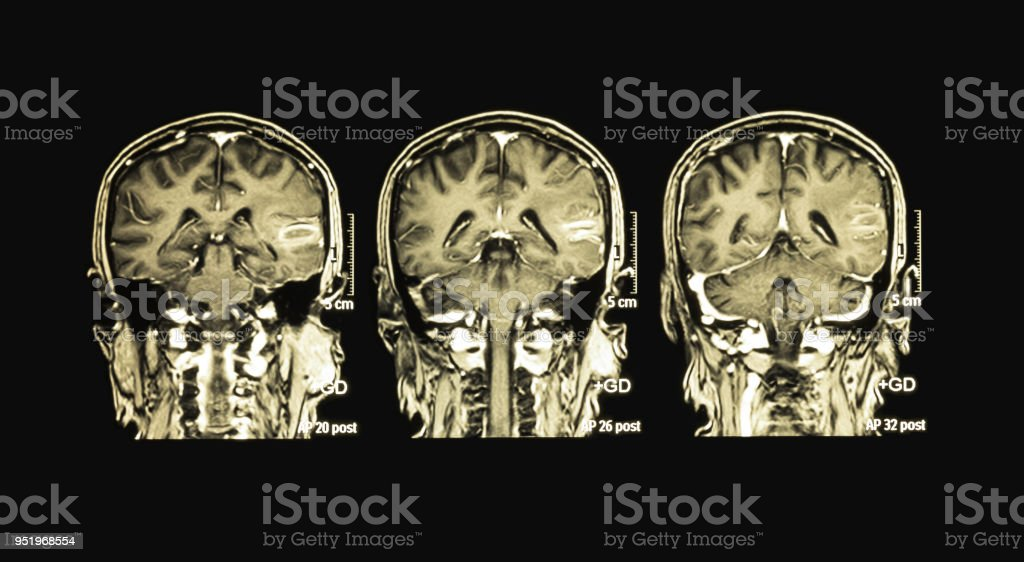 Mriof The Brain Case Of Hematoma At Left Temporal Lobe Stock Photo ...
