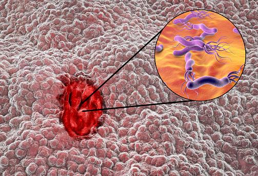 helicobacter-pylori-bacterie