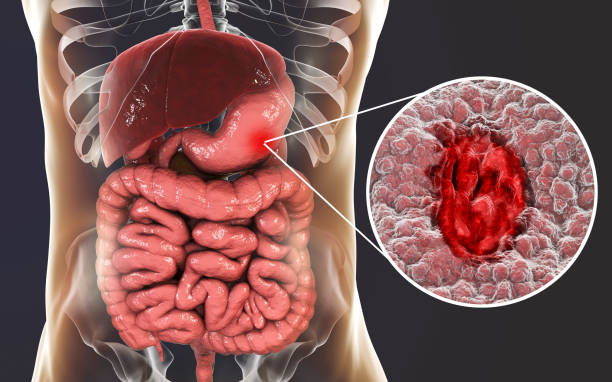 Mucosa of stomach with peptic ulcer stock photo