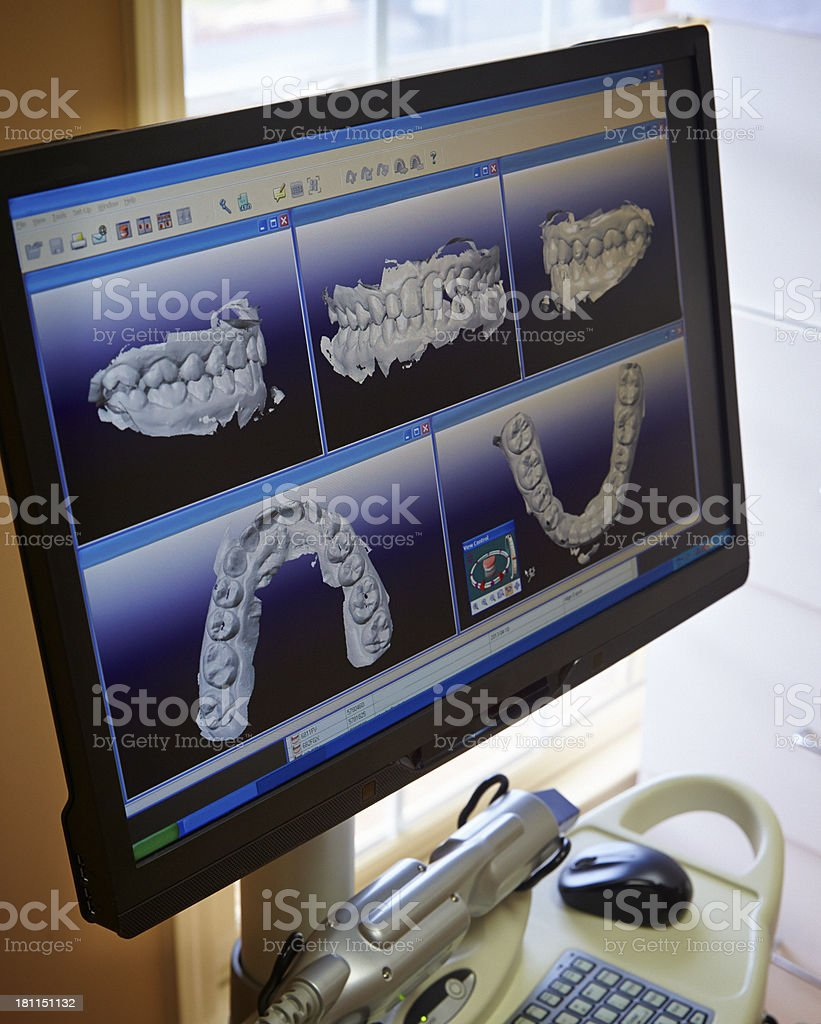 Multiple Dental Impressions stock photo