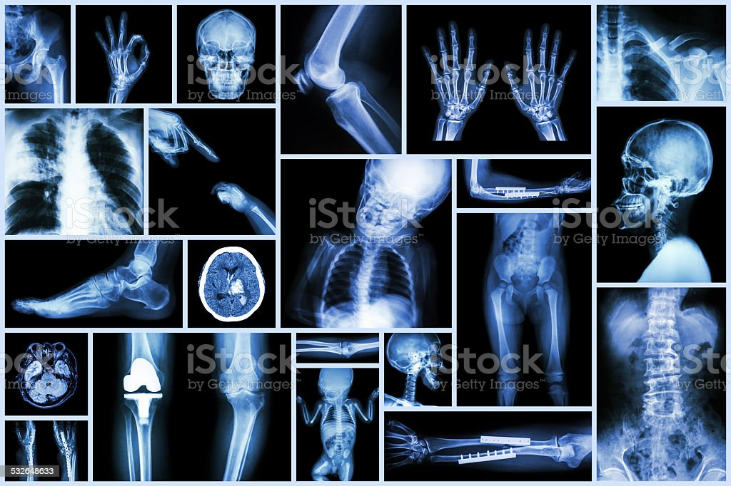 Collection X-ray multiple part of human & Orthopedic surgery &...
