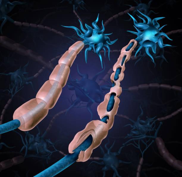 multiple sklerose beschädigt myelin - axon stock-fotos und bilder