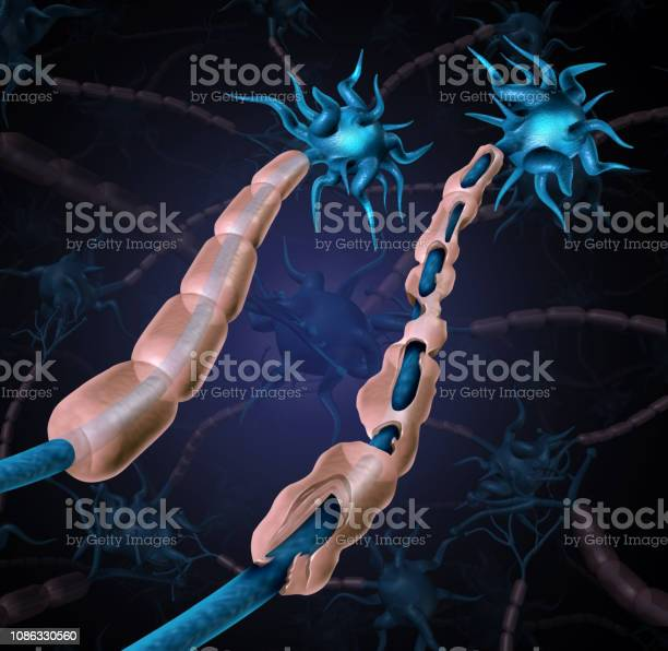 Multiple Sclerosis Damaged Myelin Stock Photo - Download Image Now