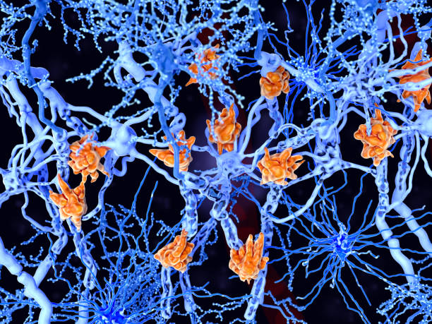 Multiple sclerosis (MS): microglia cells damage the myelin sheath of neuron axons. stock photo
