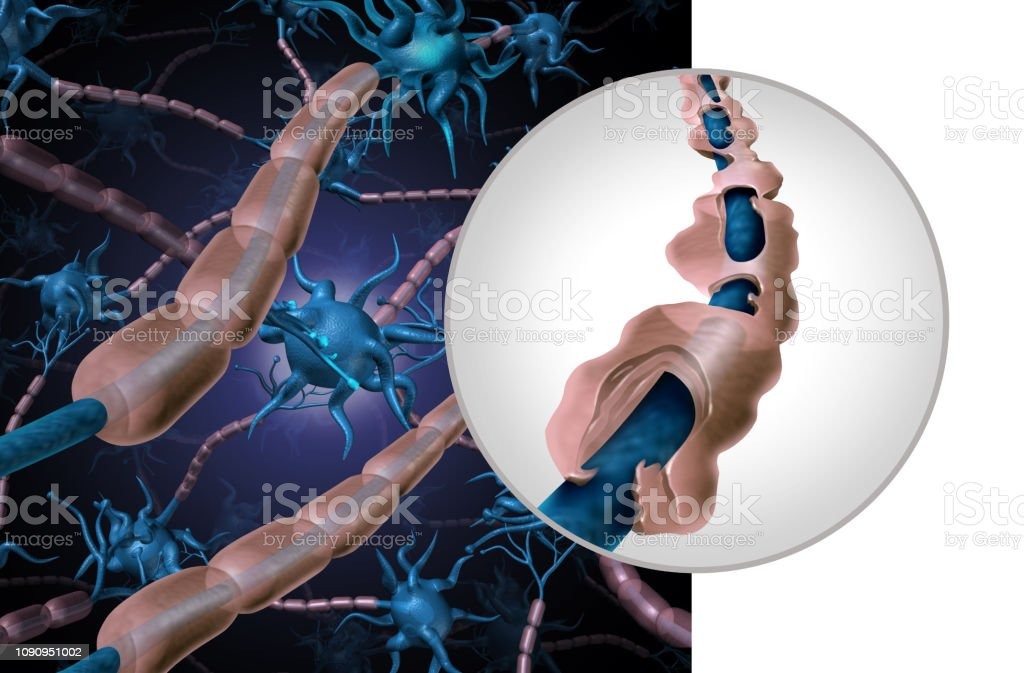Multiple Sclerosis Myelin Disease Multiple sclerosis myelin disease or MS autoimmune disorder with healthy nerve with exposed fibre with scarrred cell sheath loss as a 3D illustration. Biological Cell Stock Photo