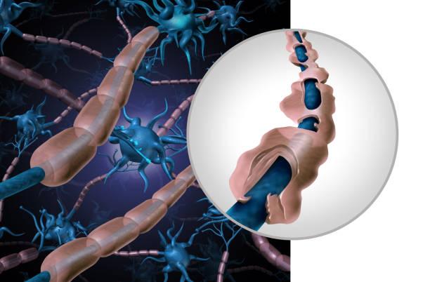 multiple sklerose myelin erkrankung - axon stock-fotos und bilder