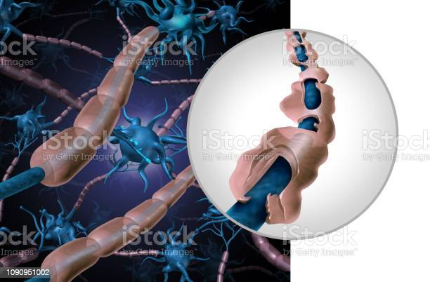 Multiple Sclerosis Myelin Disease Stock Photo - Download Image Now