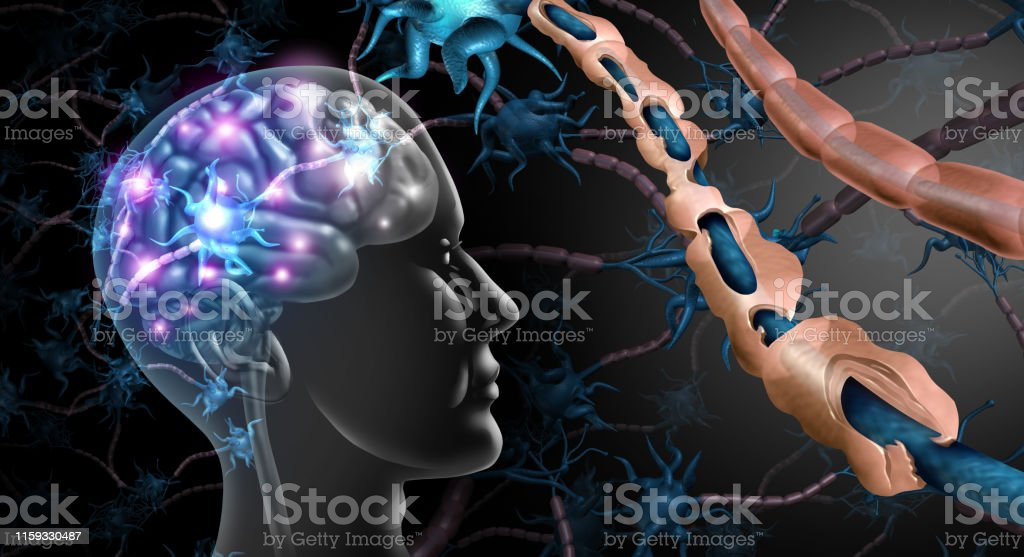 Multiple Sclerosis Nerve Disorder Multiple sclerosis nerve disorder and damaged myelin or MS autoimmune disease with healthy nerve with exposed fibre with scarrred cell sheath loss with 3D illustration elements. Activity Stock Photo