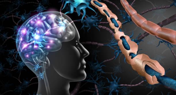 Multiple Sclerosis Nerve Disorder stock photo